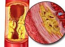 About atherosclerosis of the aorta